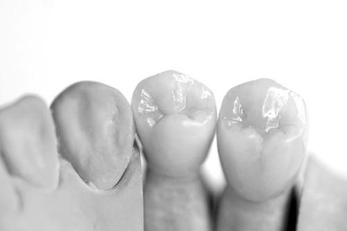 Zahnkronen Remscheid